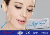 Remplissage cutané réticulé injectable de Reyoungel pour la plénitude faciale de joue