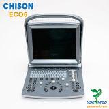 Ultrasonido Chison Eco5 de Doppler del color del Portable médico del hospital 2.o