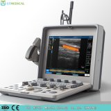 Máquina do ultra-som do trole do equipamento 4D Doppler do hospital para a gravidez