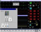 17 Zollmodularer Multi-ParameterPatienten-Überwachungsgerät, ECG EKG Monitor, Handmonitor der Screen-lebenswichtigen Zeichen-12-Leads ECG, IBP Monitor (SC-C90)