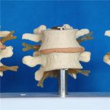 Het menselijke Model van het Skelet van de Anatomie van de Stekel Lumbale Medische (R020704)