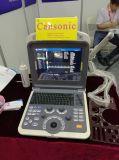 携帯用カラードップラー超音波のスキャンナー