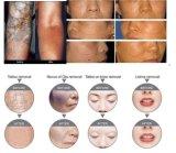 Dispositivo de remoção de tatuagem a laser multifunções