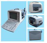 Scanner convesso portatile di ultrasuono (CMS600B1)