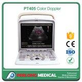 医療機器の携帯用カラードップラー