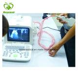 Volles Digital-Ultraschalldiagnosesystem (ISO9001 \ CMD \ CER)