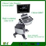 De draagbare Prijs Chison Qbit 7 van de Fabriek van de Ultrasone klank van Doppler van de Kleur