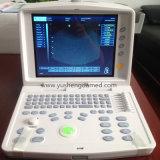 Ce/FDAの公認の診断携帯用医学の超音波機械