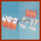 Modello dentale del dente di decomposizione di Canies di studio