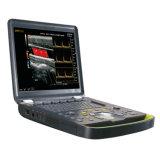 Système d'échographie portable Doppler couleur portable (Bcu60)