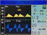 医療機器の麻酔Machine Maquina De Anestesiaマイクロコンピューター制御され換気装置