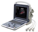 Beweglicher Farben-Doppler-Ultraschall-Scanner für Kardiologie