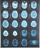 Medizinischer verwendeter Röntgenstrahl-trockener blauer Film für Drucken der Rekonstruktion-3D