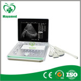 Portátil Ultrasound Scanner de My-A009 15inch Screen PC Based