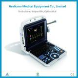 Sistema de diagnóstico del ultrasonido llevado a mano seguro del color Hu6