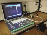 Laptop USB het Volledige Digitale Ultrasone Systeem van de Diagnose