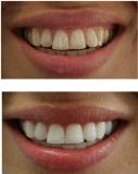 Dents duelles professionnelles de HP du baril 35% blanchissant le nécessaire