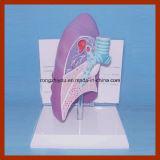 教育デモンストレーションの病気の肺解剖モデル