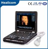 Huss-10 plus 4D Laptop de Scanner van de Ultrasone klank