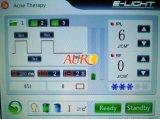 Оптимальная технология ИМПа ульс выбирает машина удаления волос Shr