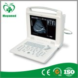 Mi - A005 Digital Escáner Ultrasonido Portátil