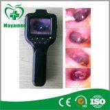 デジタル私G044cの携帯用医学のOtoscope