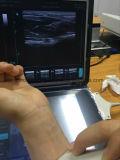 Lineare Fühler-Ultraschall-Hochfrequenzmaschine für Msk und Muskel