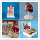 Modèle anatomique de dents médicales humaines pathologiques
