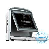 Cor disponível Ultra- Ultra-Portátil Doppler (DopScan E5)