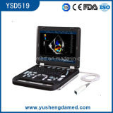 Ce Approved Laptop Medical Imagining Facilities Color Doppler Ultrasound