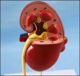 販売のためのPVC人間の腎臓の解剖モデル