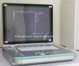 Máquina portátil do ultra-som do teste de gravidez do portátil do baixo preço