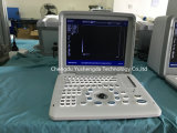 Portable Abdominal Diagnostic Equipment Ultrasound Scanner