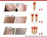 Сторона сливк разбалластования кожи Chloasma метки угорь удаления шрама Cream извлекая забеливая сливк