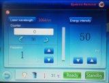 532nm 1064nm 1320nm interruptor Q ND YAG Laser Tattoo Removal Machine