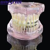 Modelo dental ortodôntico dos dentes com suportes