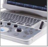 Instrument médical Digital B/W de la CE Bcu20 de système diagnostique portatif approuvé d'ultrason d'OIN