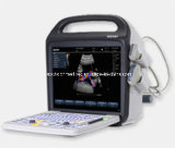 Sistema de Doppler del color (ultrasonido, ultrasoni, color Doppler, explorador, 3D, 4D)