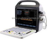 Plein matériel de vente chaud Ysd290 d'ultrason de couleur de Digitals d'ordinateur portatif