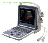 12inch LED 가득 차있는 디지털 색깔 도풀러 진단 의학 Sonography