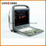 Sonoscape S2スマートな携帯用カラードップラー超音波システム