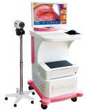 2016 Digital Video Vaginal Colposcope für Vagina