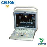 Ultrasone klank van Doppler van de Kleur van het ziekenhuis de Medische Draagbare 4D Chison Q9