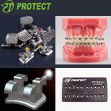 Roth ortodontico inquadra la parentesi dentale di Roth