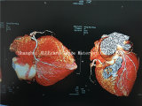 Freie Proben! Laserdruck-medizinischer Film-Farben-Film