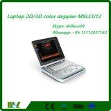 Macchina popolare Mslcu12A di ultrasuono di Doppler di colore del computer portatile 2D/3D