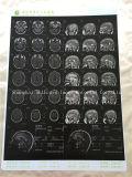 白いカラーインクジェット医学の乾燥したフィルム/X線の医学のフィルム