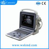 Cansonic Ultraschall-Scanner mit verschiedenem Fühler wählen