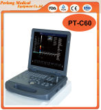 PT-C80plus 3D Trolley Color Doppler Ultrasound Diagnostic System