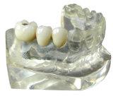 CCM dental com todos os tipos dos implantes feitos no laboratório dental de China